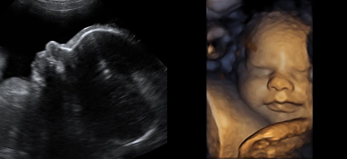 ultrasonido, obstetricia, ecografía