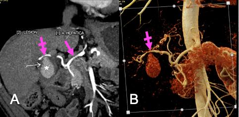 Hemorragia posterior a colecistectomía
